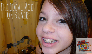 The Ideal Age for Braces (5)